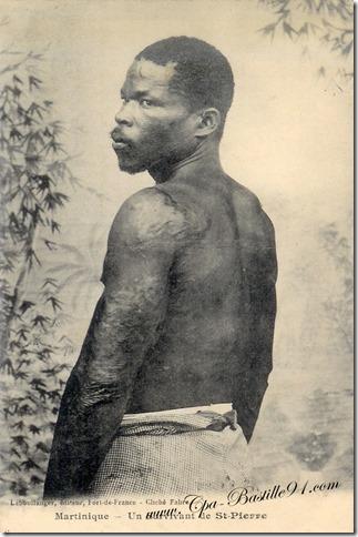 Martinique-Un-survivant-de-St-Pierre-éditeur-Leboullanger